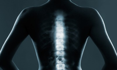 scientists-developed-a-polymer-sponge-to-repair-the-spine