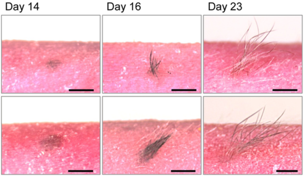 lost-your-hair-this-artificial-skin-could-put-them-back-on-your-head